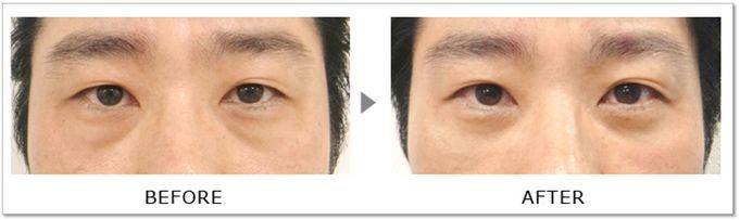 ▼ 下眼瞼脱脂術 2