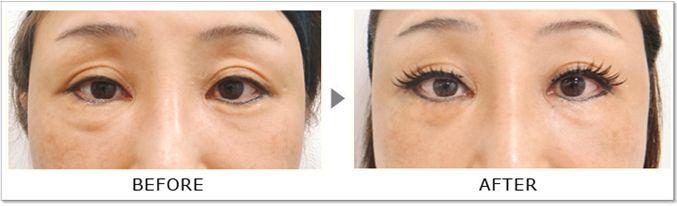 下眼瞼タルミ改善2