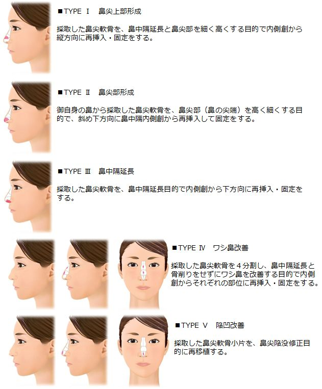 鼻尖軟骨切除 & 再移植 Ⅰ~Ⅴ