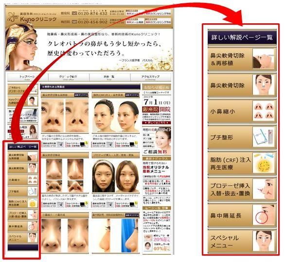 鼻の整形サイト